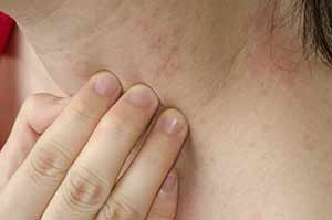 psoriasis-treatment-plano